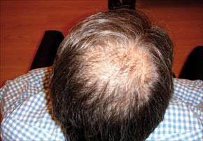 Chute Des Cheveux Et Calvitie